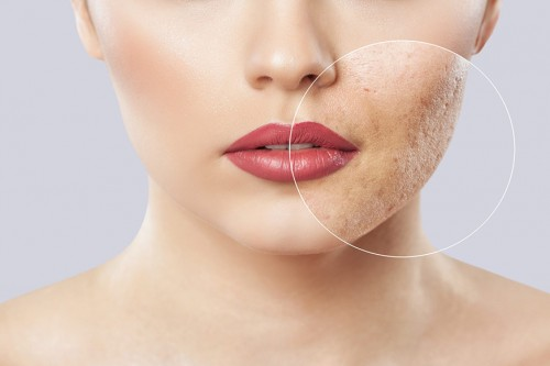 How to Get Rid of Acne Scars Quickly?